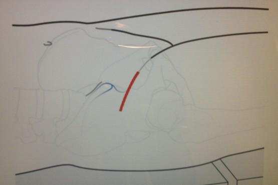 De Anterieure Toegangsweg: Minimaal Invasieve Techniek voor het plaatsen van een Heupprothese
