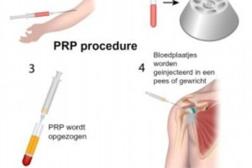 Wat is PRP-therapie?