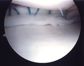 Bucket handle tear medial meniscus sutured