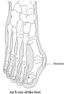 Bunions