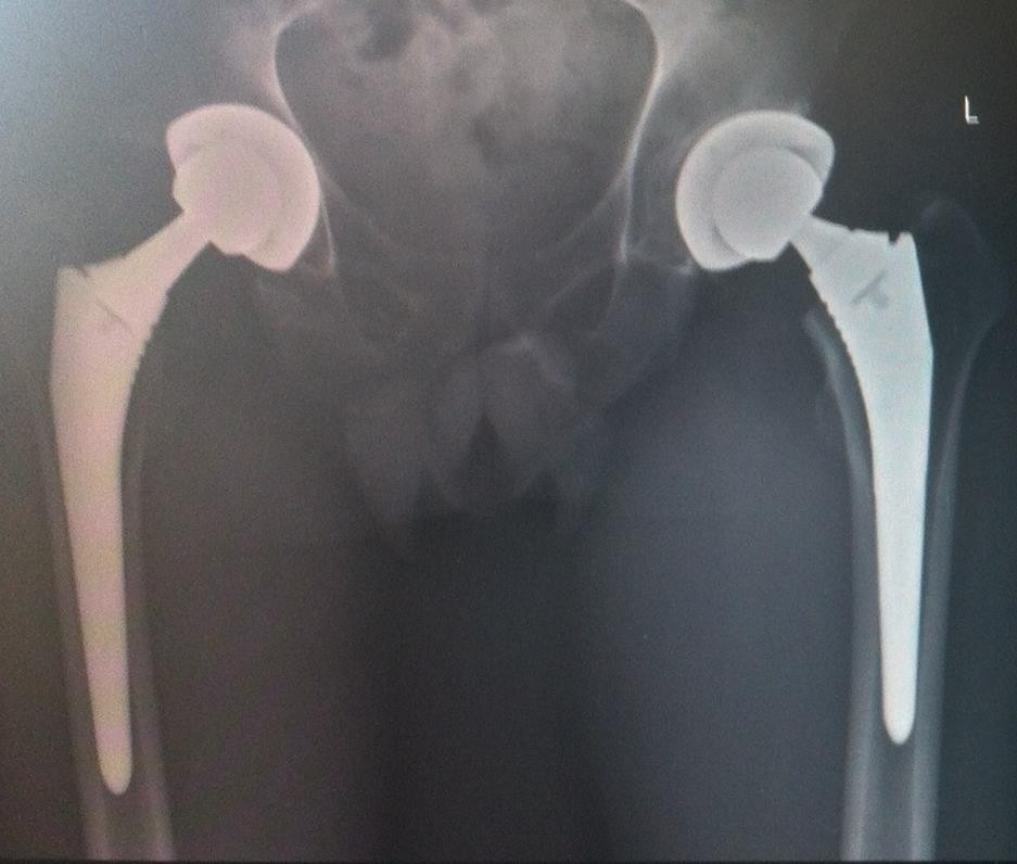 Different types of hip prostheses exist.